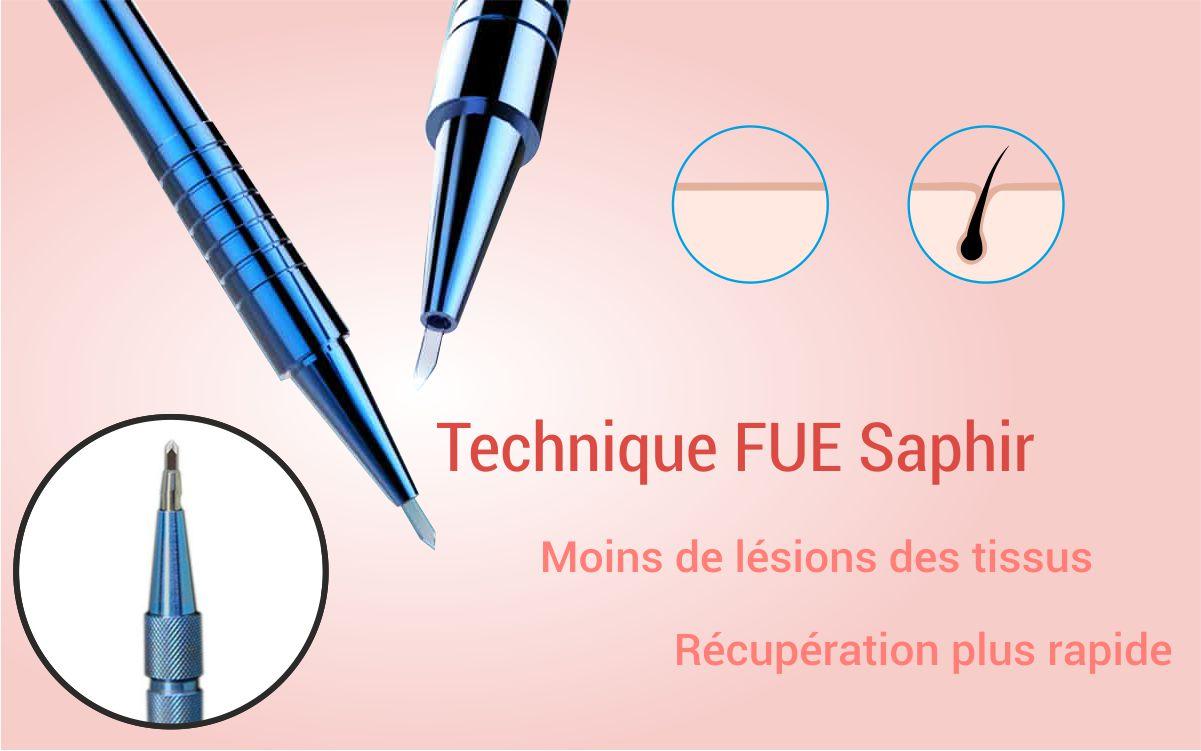 GREFFE DE CHEVEUX - Dr. Can - Aesthetic center